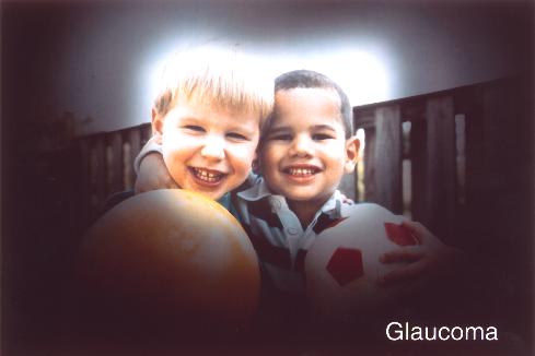glaukóma látás műtét után a gyógyszerek látásra gyakorolt mellékhatásai